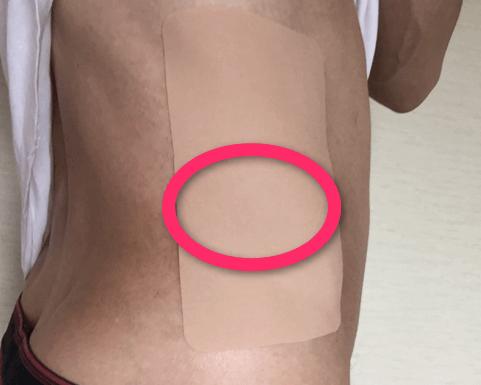 脇腹と背中の皮膚の痛みに鎮痛剤をはる。