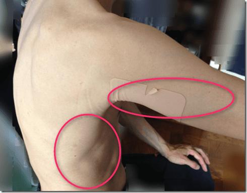 皮膚 ひりひり 痛みがでる背中と脇腹と二の腕。