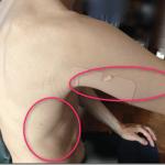 皮膚のヒリヒリした痛みの原因と対処療法とは?
