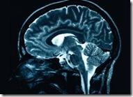 メタボは脳梗塞を生じさせ「うつ病」の引き金に