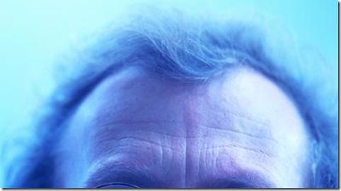 NHKニュースによると、薄毛の治療ガイドラインがAランクと認めるミノキシジルの通販は?