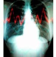 機能性胃腸症「機能性ディスペプシア」の原因と治療法とは?