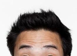 遺伝子レベルで検査できる将来の脱毛リスク