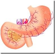 ためしてガッテンでピロリ菌と胃潰瘍、がんの関係